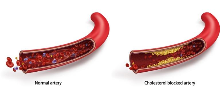 Top 10 Supplement Reviews - High Cholesterol Risk Factors 2